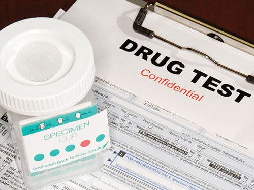 Drug Hair Testing In Trucking Industry